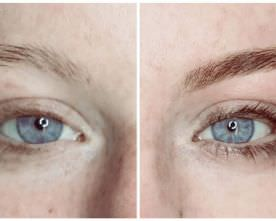 What You Need to Know About Eyebrow Microblading