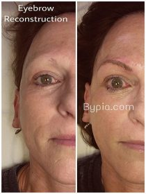 Eyebrow reconstruction by Pia Day Spa